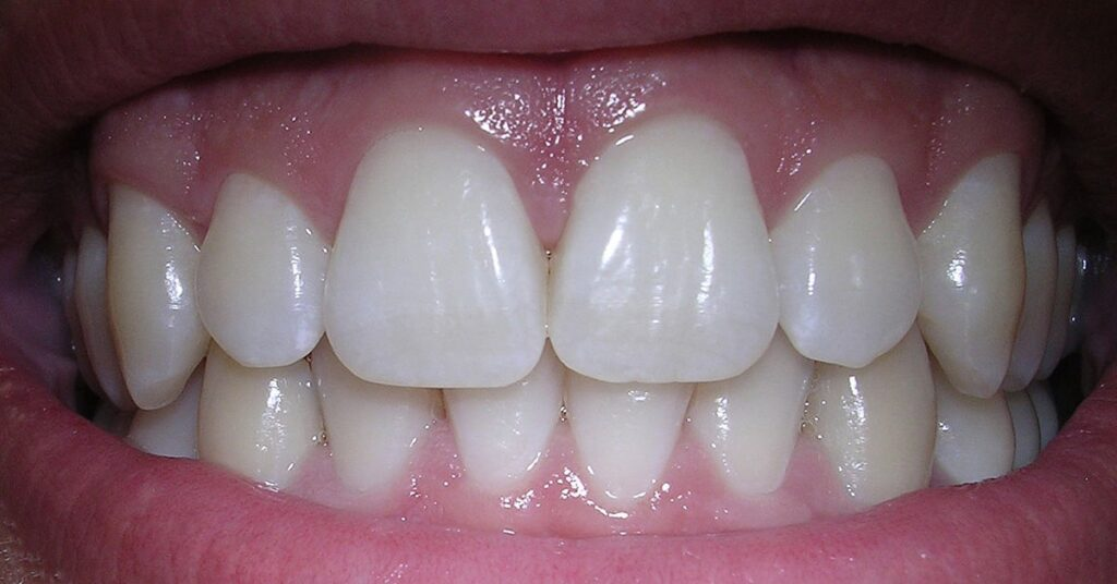 Take care of your teeth