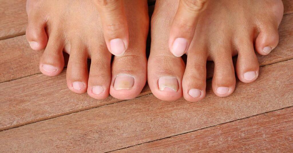 What kills nail fungus